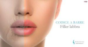 Read more about the article Codice a barre sul contorno labbra? Acido ialuronico e botulino
