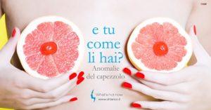 Read more about the article Correzioni delle anomalie del capezzolo