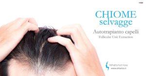 Read more about the article Autotrapianto capelli. I vantaggi della tecnica FUE