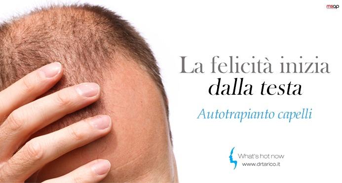 Read more about the article Microchirurgia e Hair Terapy: Autotrapianto dei capelli? la password è FUE!