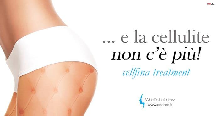 You are currently viewing …e la cellulite non c'è più