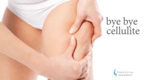 Read more about the article La Cellulite. Cos'è, come si elimina.