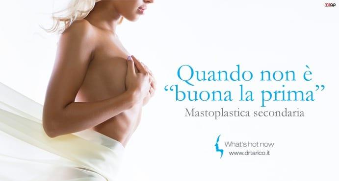 Read more about the article Mastoplastica secondaria: di cosa si tratta?