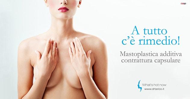 Read more about the article Mastoplastica additiva e contrattura capsulare: diagnosi, prevenzione, soluzione