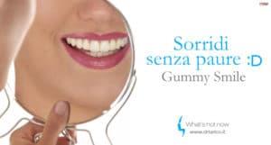 Read more about the article Gummy Smile e Proteina Botulinica: correggere il Sorriso Gengivale senza Chirurgia oggi è possibile.