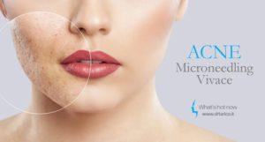 Read more about the article Cicatrici da acne? Vivace, il nuovo trattamento che rigenera la pelle
