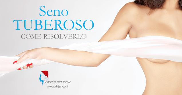 Read more about the article Seno Tuberoso: come risolverlo
