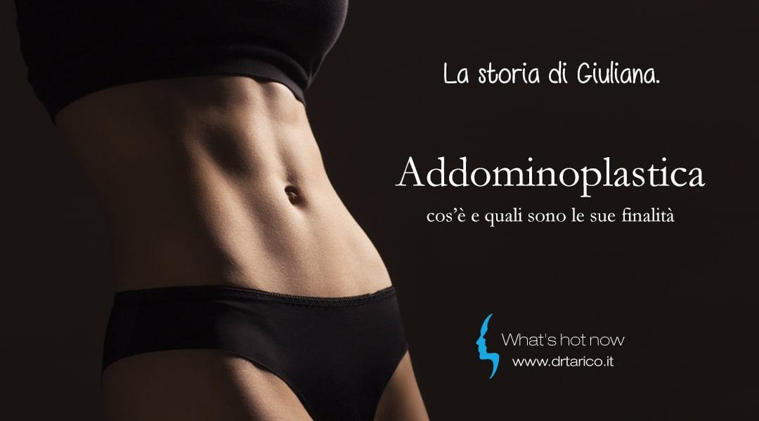 Read more about the article Addominoplastica, la storia di Giuliana