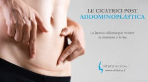 Read more about the article Le cicatrici post Addominoplastica