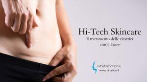 Read more about the article Hi-Tech Skincare: il trattamento delle cicatrici con il Laser